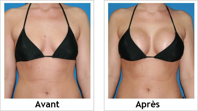 Voici comment avoir des seins plus fermes et redessinés sans chirurgie