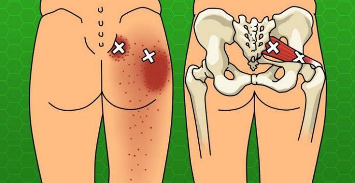 Voici des 6 étirements faciles à faire chez soi pour soulager vos douleurs de sciatique, à la hanche et dans le bas du dos