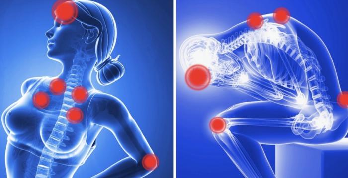 16 symptômes de la fibromyalgie que chaque femme devrait savoir